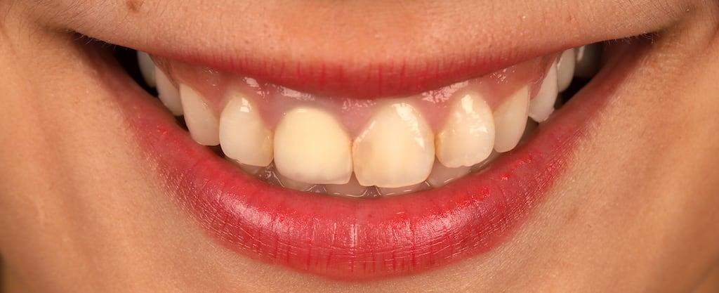 瓷牙貼片價格-牙齒貼片缺點-牙齒美白推薦診所選擇-瓷牙貼片治療前