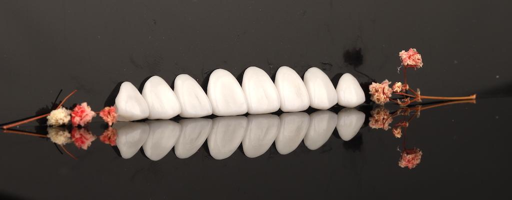 瓷牙貼片價格-牙齒貼片缺點-牙齒美白推薦診所選擇-經由顯微微創研磨後製作的瓷牙貼片