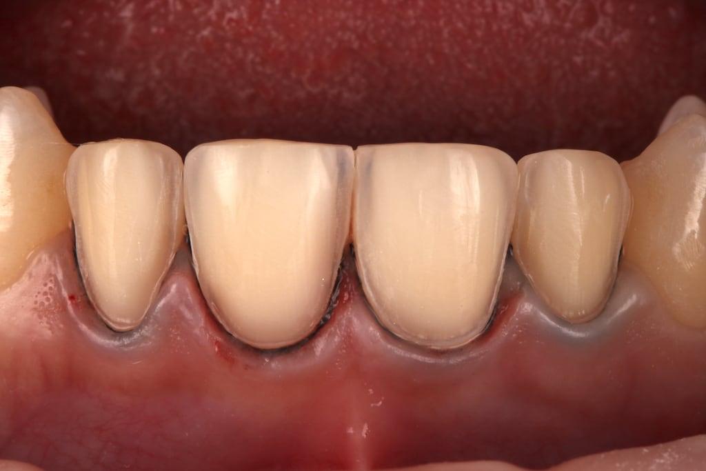 瓷牙貼片價格-牙齒貼片缺點-牙齒美白推薦診所選擇-顯微鏡下研磨的前門牙四顆貼片