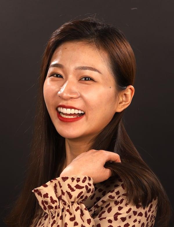 瓷牙貼片價格-牙齒貼片缺點-牙齒美白推薦診所選擇-DSD數位模擬後齒色改白-且明顯增加微笑曲線
