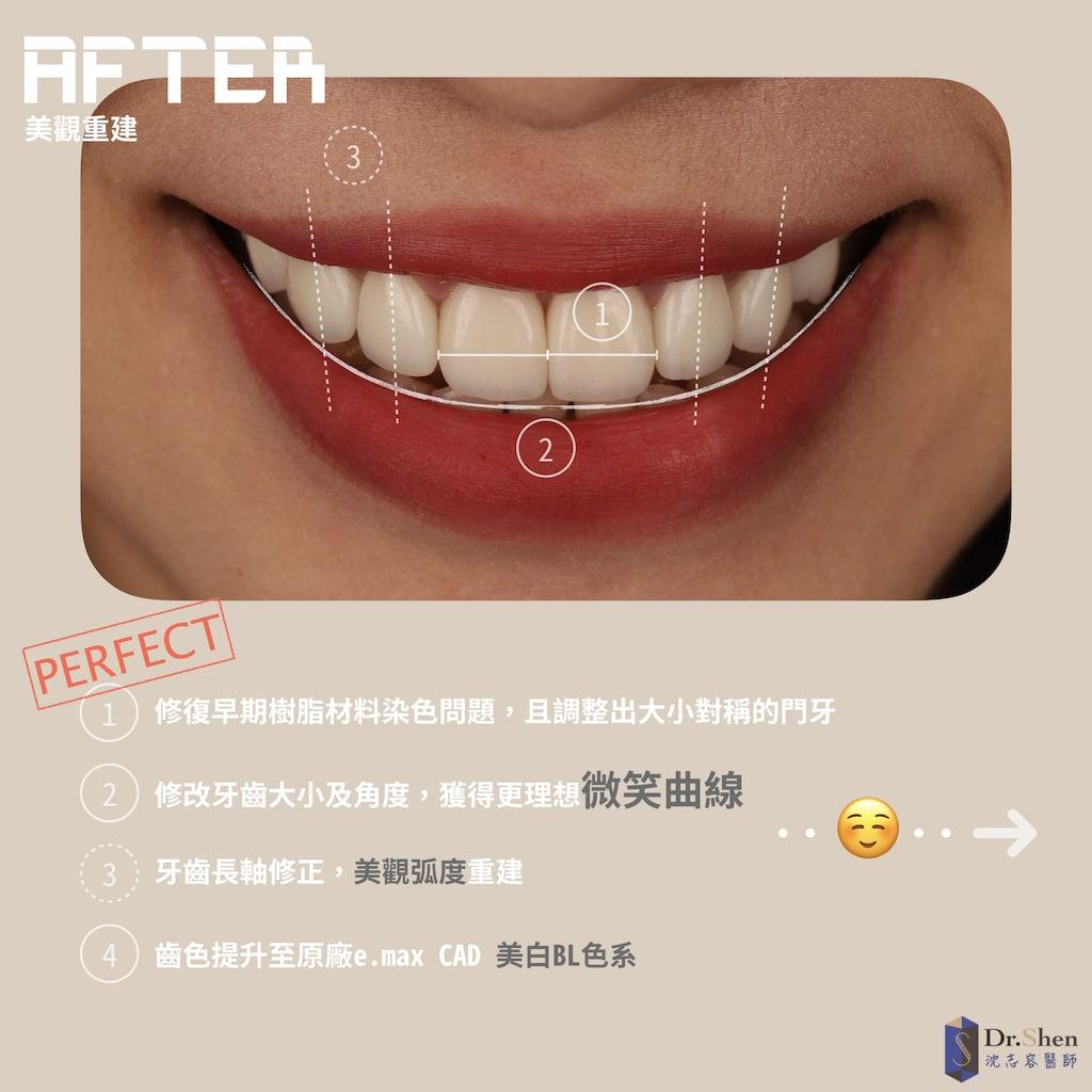 完美微笑曲線-DSD數位微笑設計-陶瓷貼片-牙齒美白貼片-樹脂染色-桃園牙齒美白