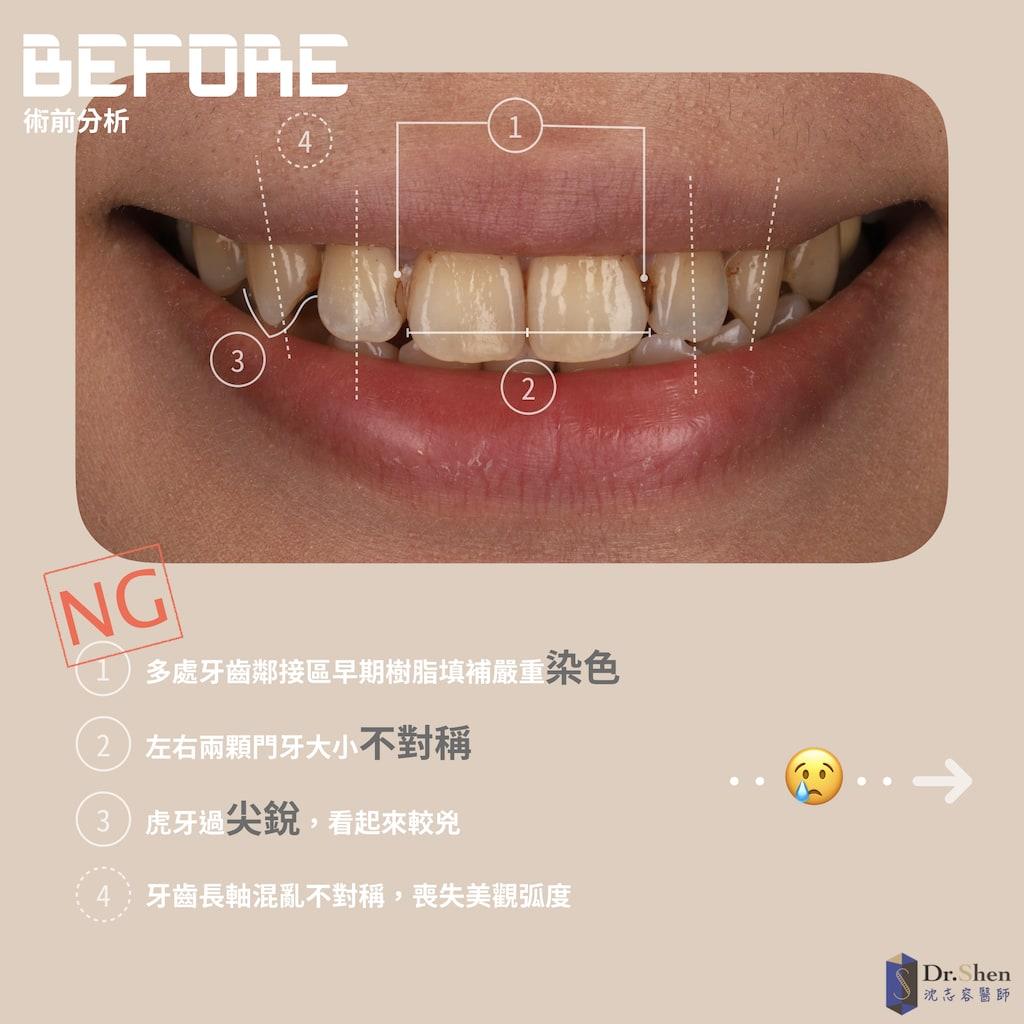 門牙大小-陶瓷貼片-牙齒美白貼片-樹脂染色-桃園牙齒美白