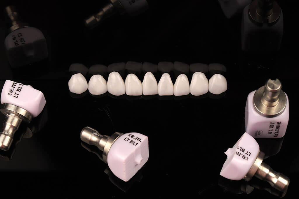 陶瓷貼片價格-牙齒貼片-瓷牙貼片-牙齒美白推薦-每一顆硨完的陶瓷料塊皆無法再重新使用