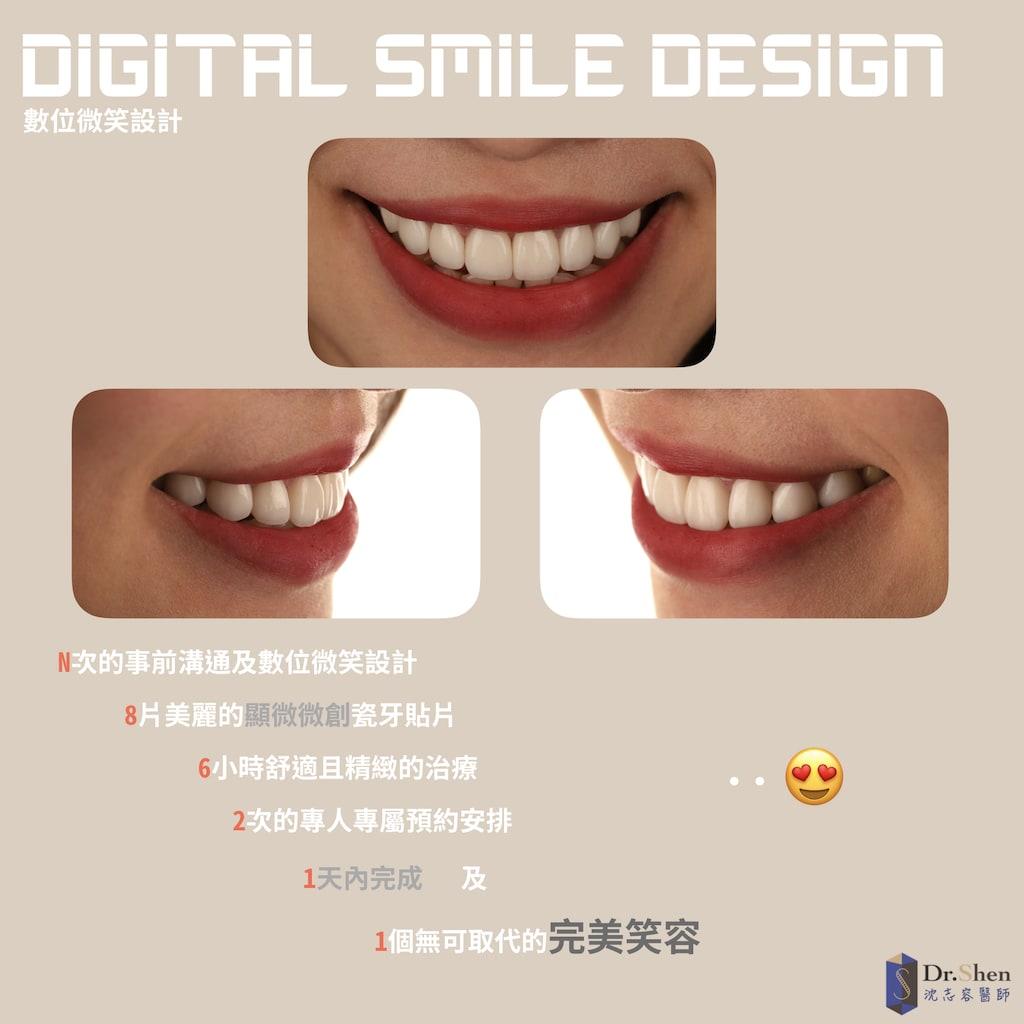 DSD數位微笑設計-桃園-陶瓷貼片-完美微笑曲線-一日美齒-牙齒美白