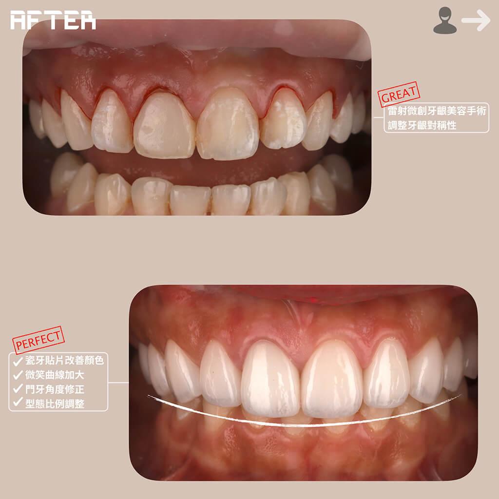 雷射牙齦美容手術-調整牙齦對稱性-dsd數位微笑設計-微笑曲線-瓷牙貼片-一日美齒-桃園牙齒美白