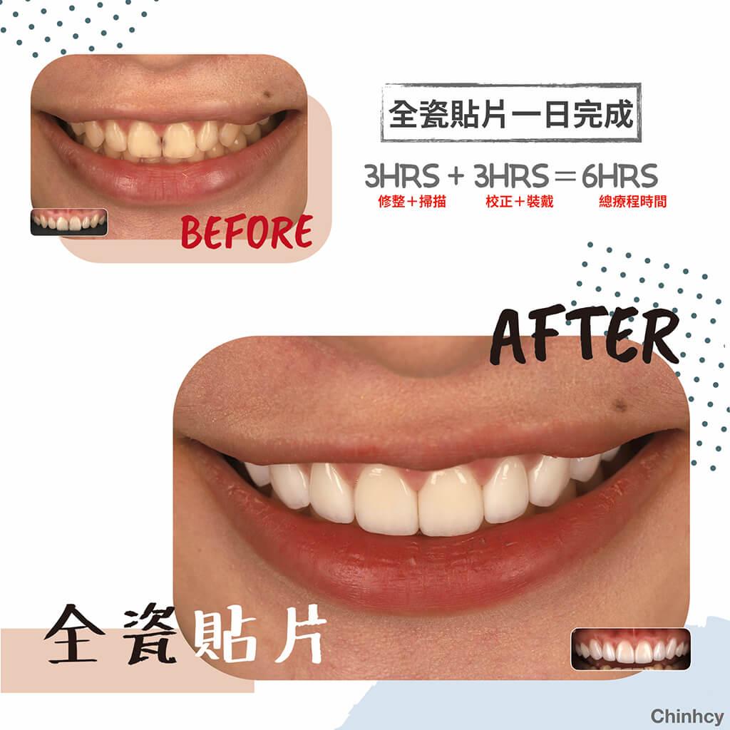 全瓷貼片-一日美齒-dsd數位微笑設計-桃園-牙齒美白推薦-完美微笑曲線-明星-藝人
