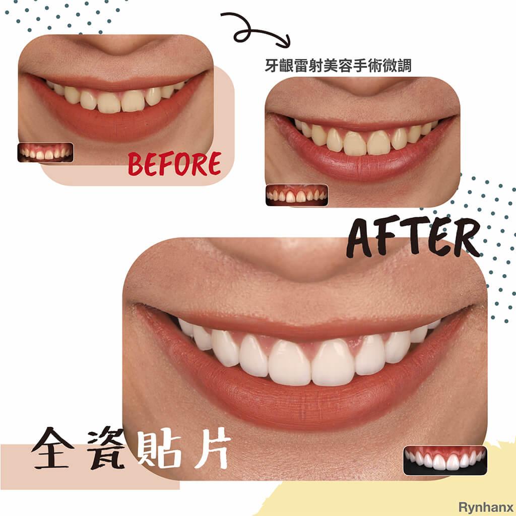 全瓷貼片-桃園牙齒美白-dsd數位微笑設計-完美微笑曲線-一日美齒-明星-藝人