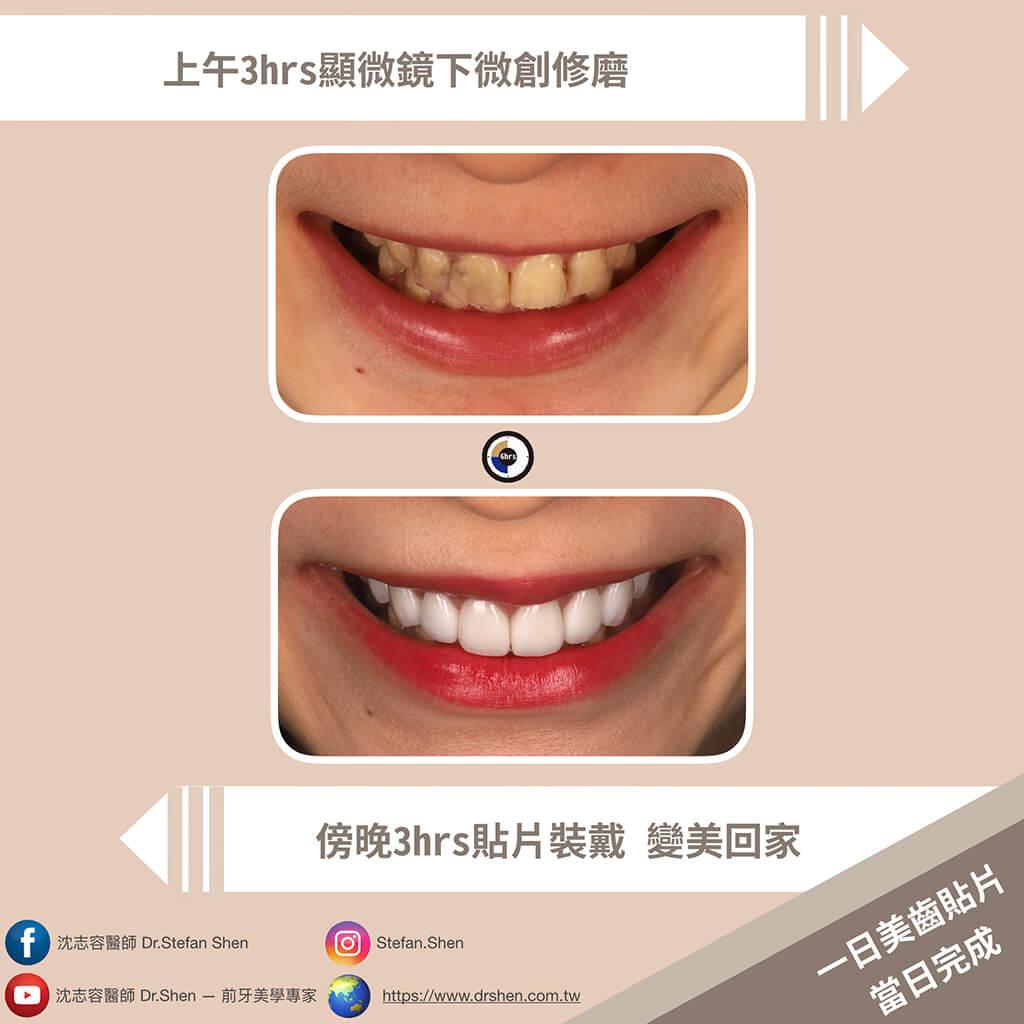 牙齒美白貼片-一美齒-全瓷貼片-DSD數位微笑設計-陶瓷貼片-桃園牙齒美白推薦
