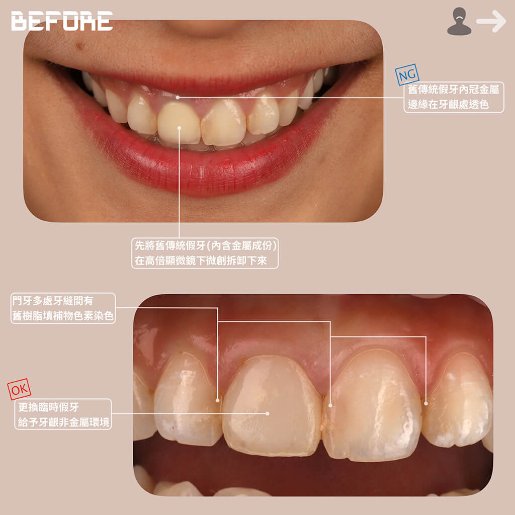 瓷牙貼片修正舊假牙金屬邊緣透色-門牙樹脂補牙染色-dsd數位微笑設計-微笑曲線-瓷牙貼片-一日美齒-桃園牙齒美白色