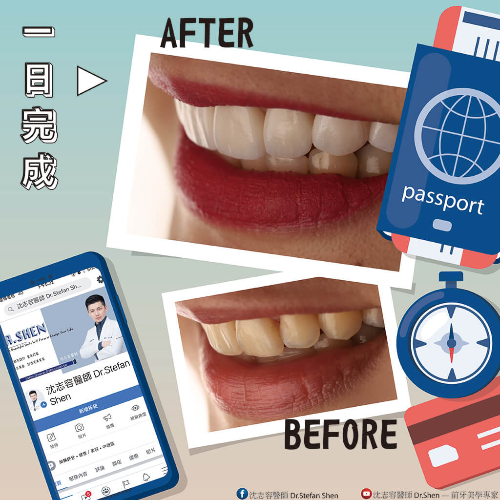 陶瓷貼片療程前後對比-瓷牙貼片-一日美齒-牙齒美白-牙齒貼片-DSD數位微笑設計-完美微笑曲線