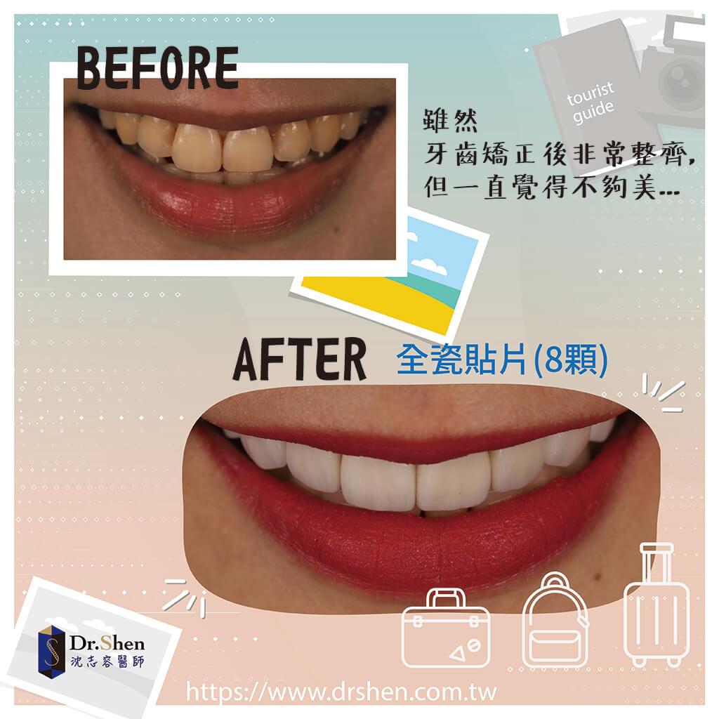 陶瓷貼片療程前後對比-瓷牙貼片-一日美齒-牙齒美白-DSD數位微笑設計-完美微笑曲線