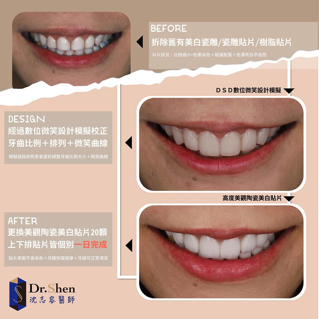 苡萱的牙齒美白心得-拆除免磨牙瓷牙貼片-換上全新陶瓷貼片