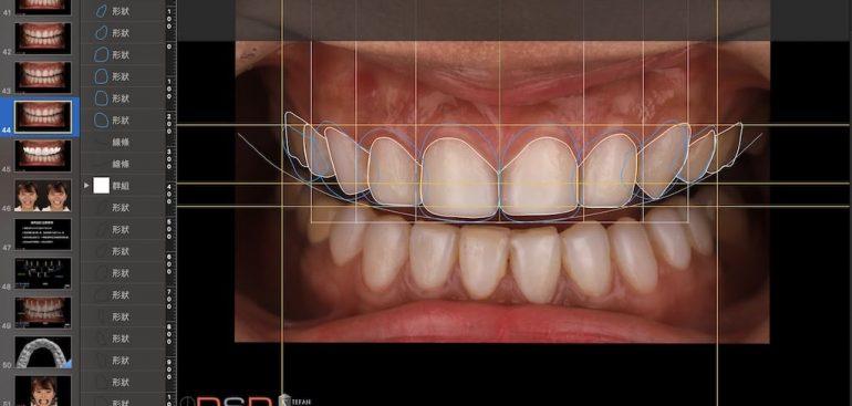 陶瓷貼片-推薦-桃園牙齒美白-沈志容醫師-DSD數位微笑設計-沈醫師親自設計每位患者的報告