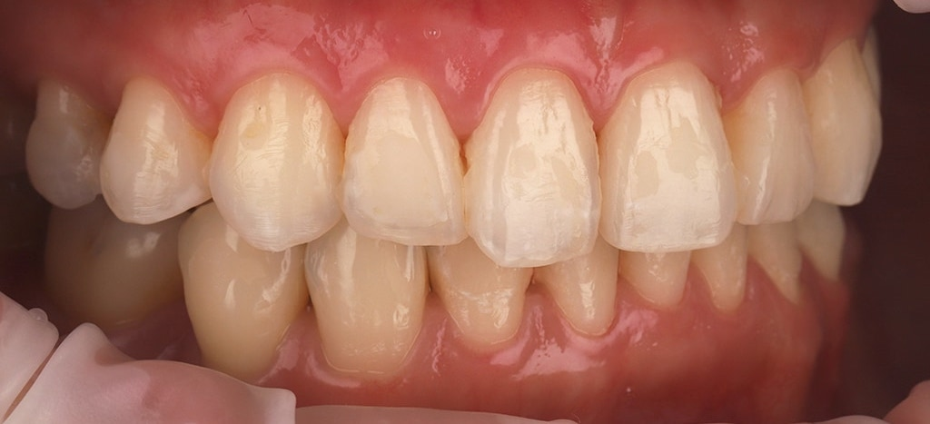 瓷牙貼片-陶瓷貼片-台灣牙齒美白推薦-海外-新加坡-Vivian治療前口內照-右