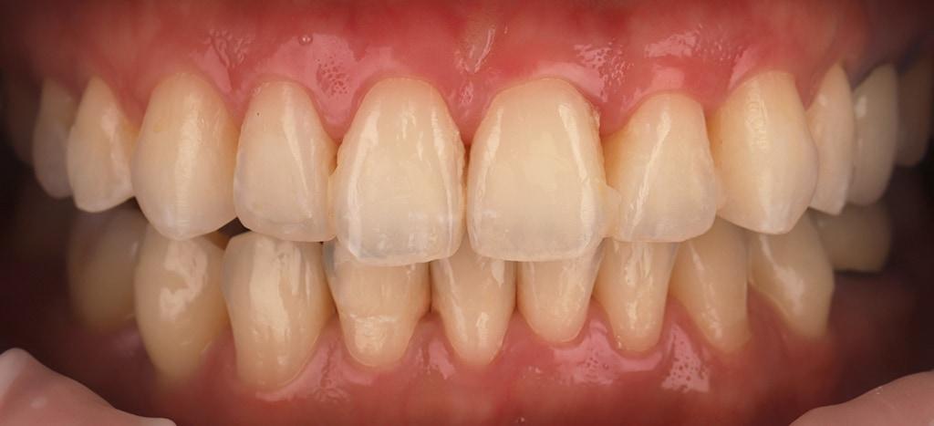 瓷牙貼片-陶瓷貼片-台灣牙齒美白推薦-海外-新加坡-Vivian治療前口內照-正面