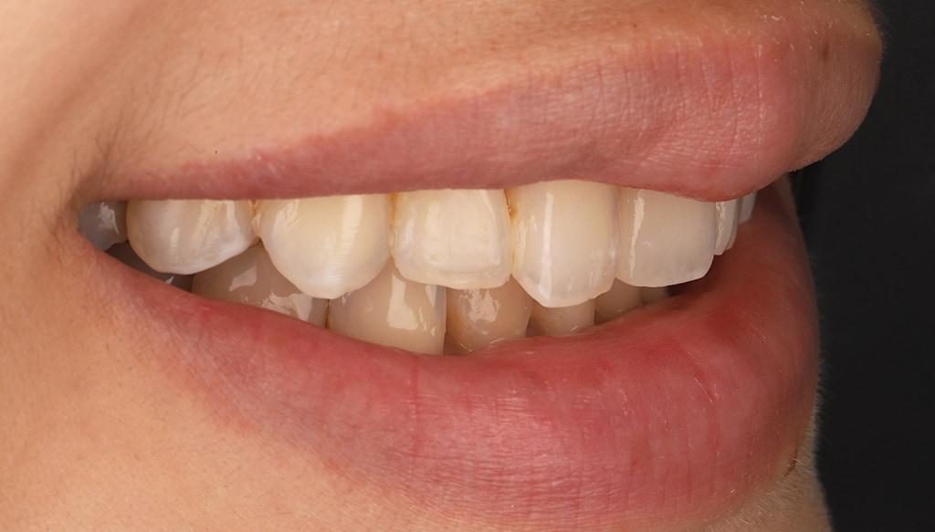 瓷牙貼片-陶瓷貼片-台灣牙齒美白推薦-海外-新加坡-Vivian治療前口外照-右