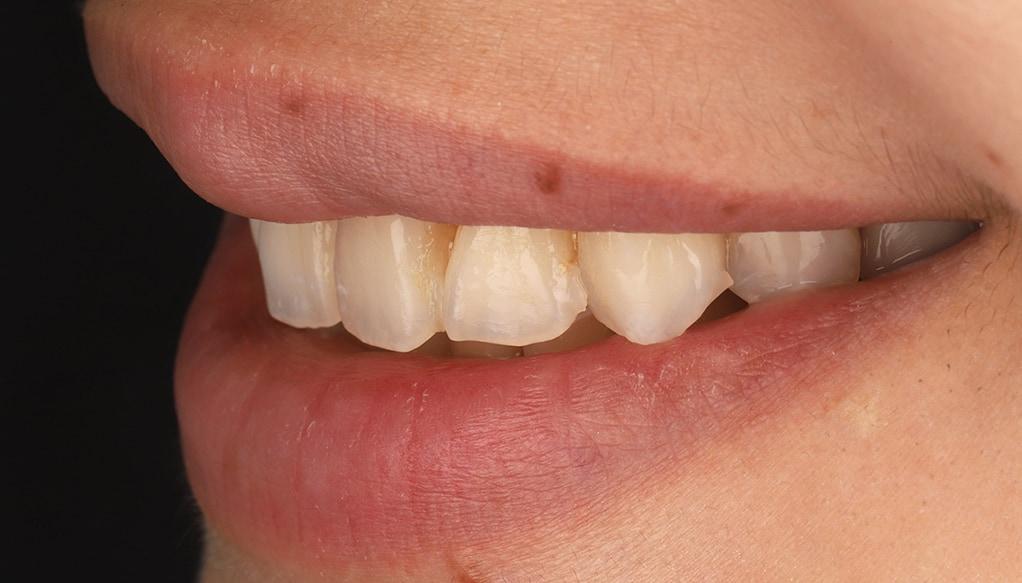 瓷牙貼片-陶瓷貼片-台灣牙齒美白推薦-海外-新加坡-Vivian治療前口外照-左