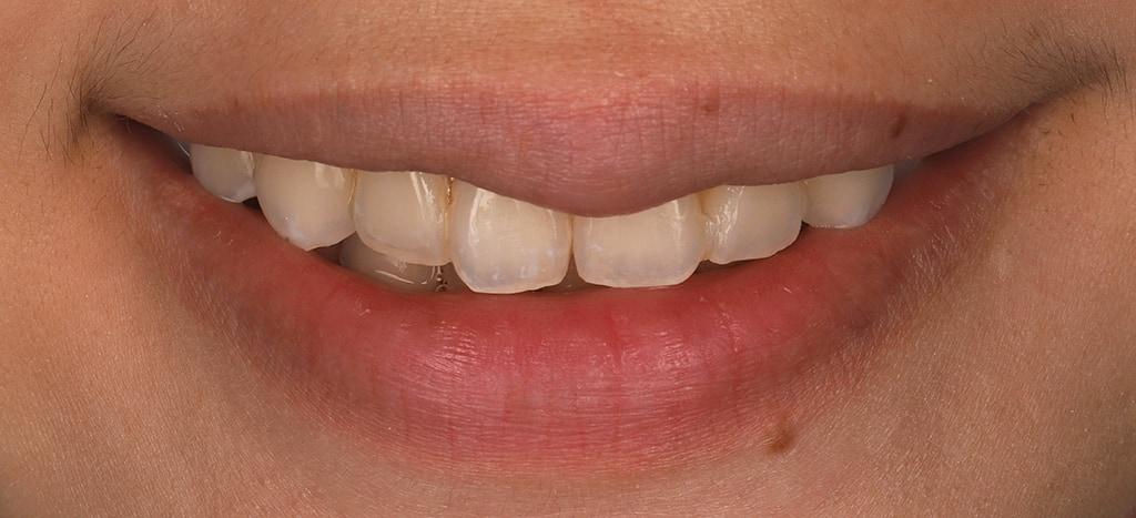瓷牙貼片-陶瓷貼片-台灣牙齒美白推薦-海外-新加坡-Vivian治療前口外照-正面