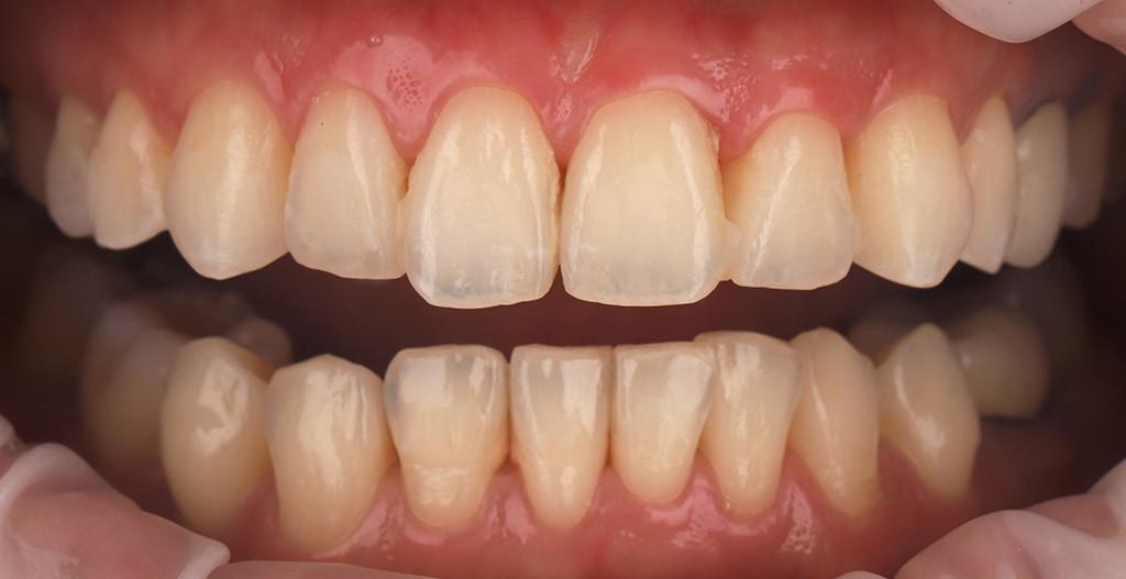 瓷牙貼片-陶瓷貼片-台灣牙齒美白推薦-海外-新加坡-Vivian治療前的口內狀況