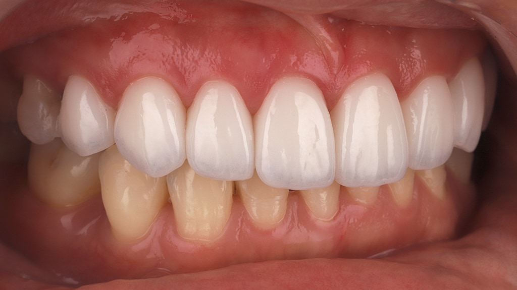 瓷牙貼片-陶瓷貼片-台灣牙齒美白推薦-海外-新加坡-Vivian治療後裝上瓷牙貼片照-側面-1