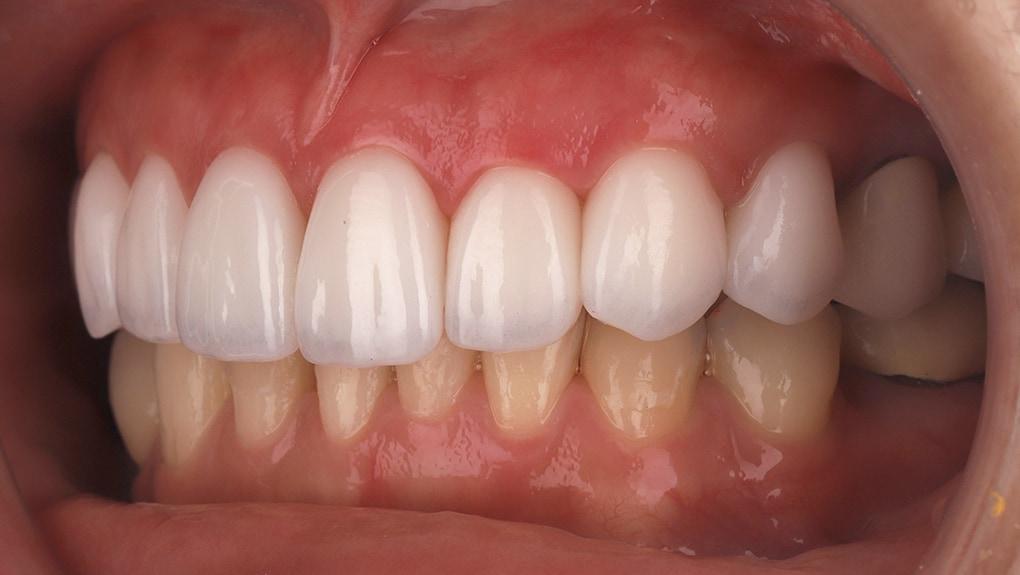 瓷牙貼片-陶瓷貼片-台灣牙齒美白推薦-海外-新加坡-Vivian治療後裝上瓷牙貼片照-側面-2