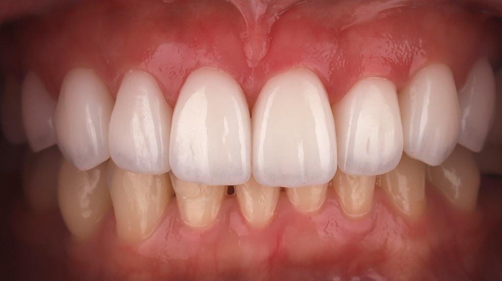 瓷牙貼片-陶瓷貼片-台灣牙齒美白推薦-海外-新加坡-Vivian治療後裝上瓷牙貼片照-正面