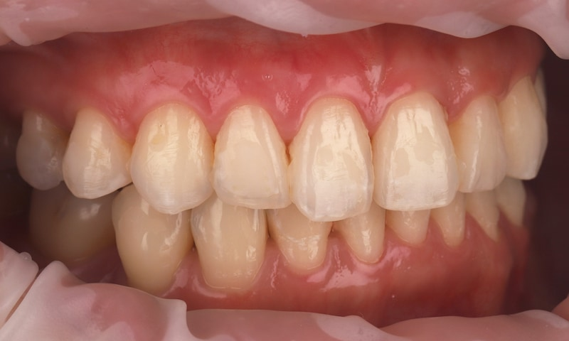 瓷牙貼片-陶瓷貼片-台灣牙齒美白推薦-海外-新加坡-Vivian瓷牙貼片術前術後對比-右側-術前