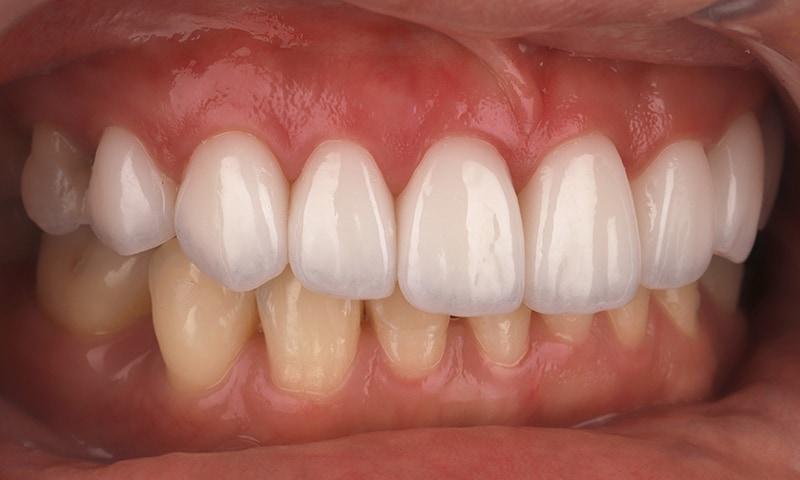 瓷牙貼片-陶瓷貼片-台灣牙齒美白推薦-海外-新加坡-Vivian瓷牙貼片術前術後對比-右側-術後
