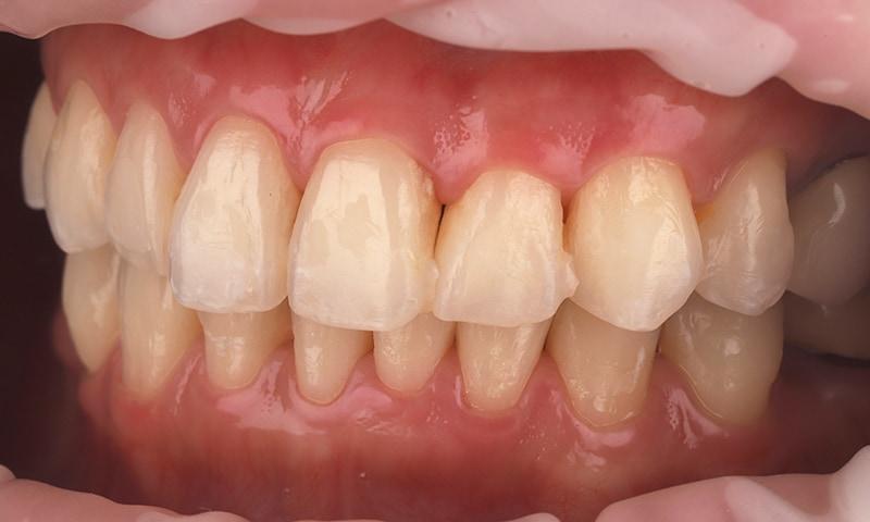 瓷牙貼片-陶瓷貼片-台灣牙齒美白推薦-海外-新加坡-Vivian瓷牙貼片術前術後對比-左側-術前