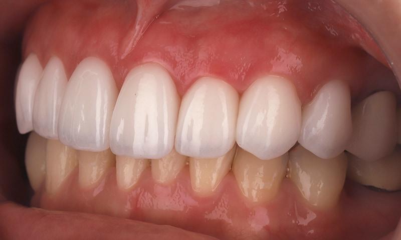 瓷牙貼片-陶瓷貼片-台灣牙齒美白推薦-海外-新加坡-Vivian瓷牙貼片術前術後對比-左側-術後