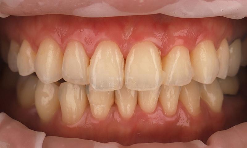 瓷牙貼片-陶瓷貼片-台灣牙齒美白推薦-海外-新加坡-Vivian瓷牙貼片術前術後對比-正面-術前