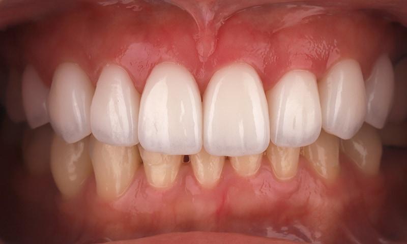 瓷牙貼片-陶瓷貼片-台灣牙齒美白推薦-海外-新加坡-Vivian瓷牙貼片術前術後對比-正面-術後