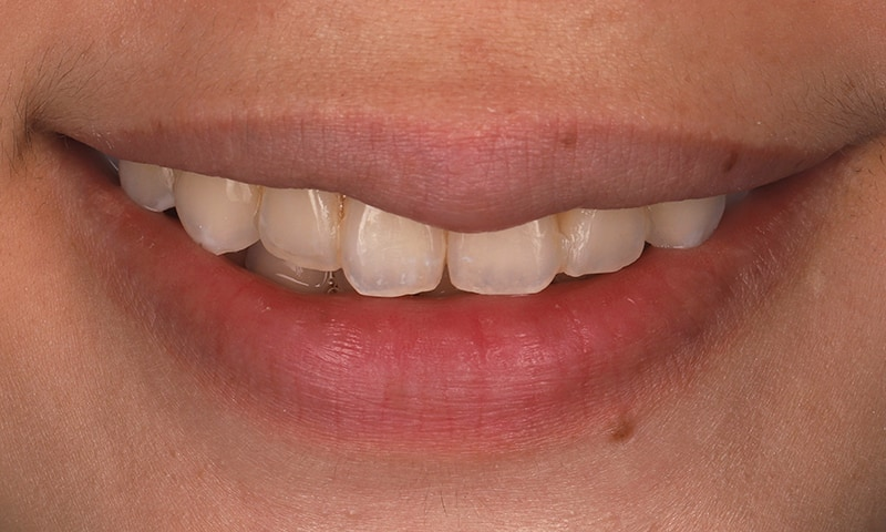 瓷牙貼片-陶瓷貼片-台灣牙齒美白推薦-海外-新加坡-Vivian瓷牙貼片術前術後對比-笑容照-術前