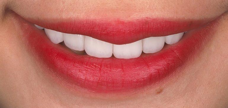 瓷牙貼片-陶瓷貼片-台灣牙齒美白推薦-海外-新加坡-Vivian瓷牙貼片術前術後對比-笑容照-術後