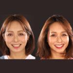 DSD數位微笑設計流程-3-試戴笑容,即時模擬調整-沈志容醫師-桃園