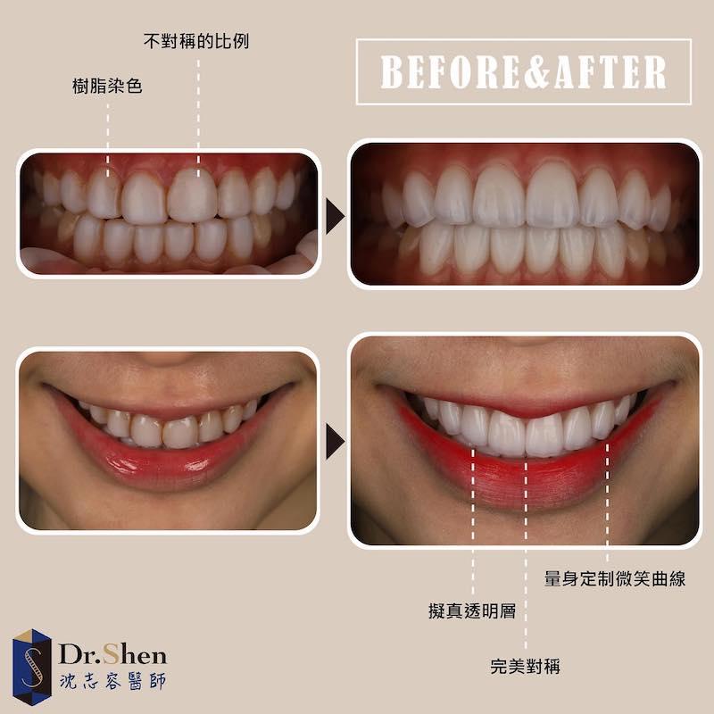 免磨牙瓷牙貼片-樹脂貼片染色-陶瓷貼片案例-沈志容醫師-桃園
