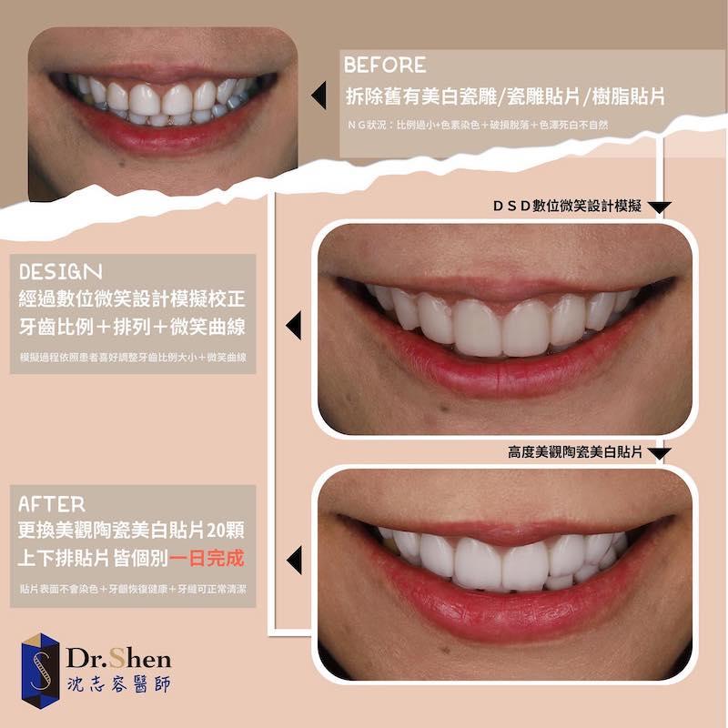 免磨牙瓷牙貼片-齒雕美白貼片拆除-陶瓷貼片案例-沈志容醫師-桃園