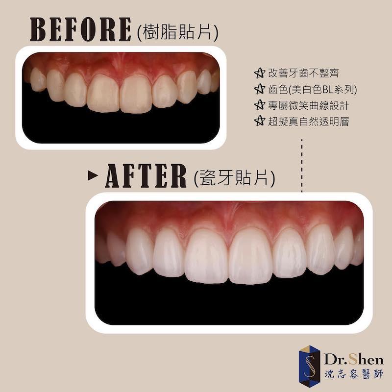 陶瓷貼片-樹脂貼片-牙齒貼片失敗-陶瓷貼片前後比較-沈志容醫師-桃園