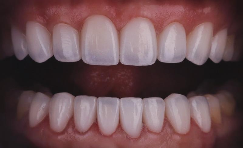 牙齒矯正-陶瓷貼片-中度-牙齒不整齊-下排牙齒亂-全瓷冠修復後-沈志容醫師-桃園