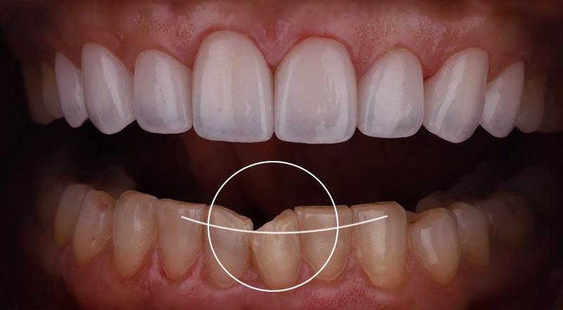 牙齒矯正-陶瓷貼片-中度-牙齒不整齊-下排牙齒亂-療程前-沈志容醫師-桃園