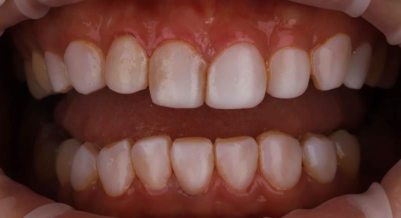 牙齒矯正-陶瓷貼片-樹脂貼片-牙齒貼片失敗-牙齦發炎-沈志容醫師-桃園