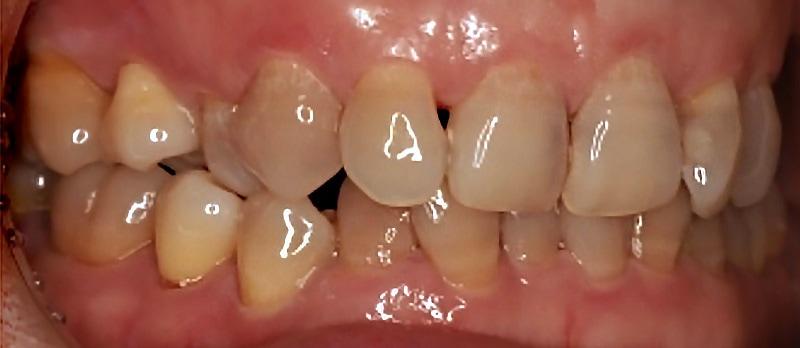 牙齒矯正-陶瓷貼片-牙齒排列嚴重不整齊-牙齒擁擠-沈志容醫師-桃園