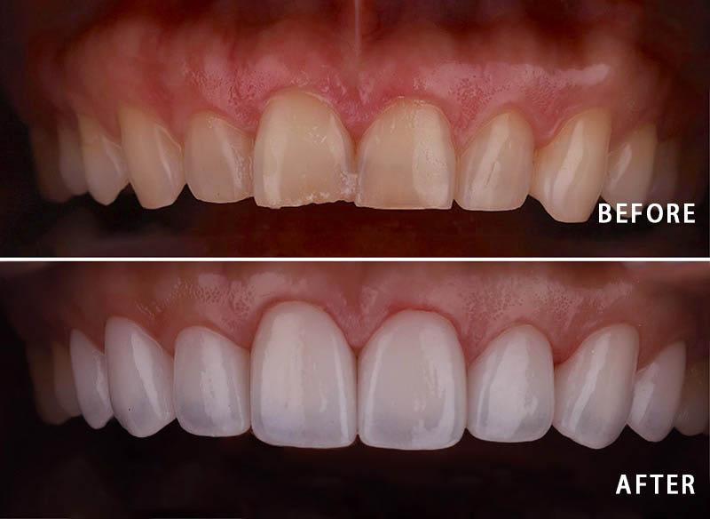 牙齒矯正-陶瓷貼片-輕微-牙齒不整齊-上排牙齒正面照-療程前後比較-沈志容醫師-桃園