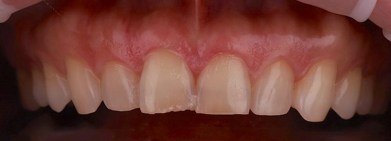 牙齒矯正-陶瓷貼片-輕微-牙齒不整齊-上排牙齒正面照-療程前-沈志容醫師-桃園