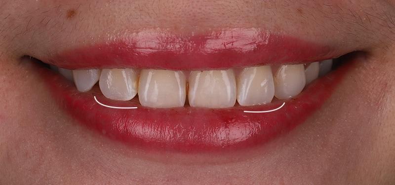 陶瓷貼片-牙齒矯正後-左右側門牙長度比較-沈志容醫師-桃園
