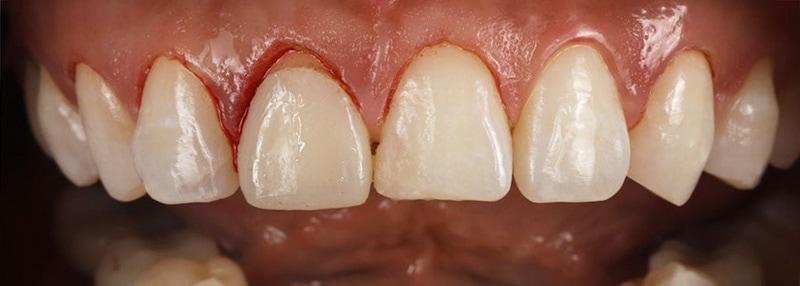 陶瓷貼片-牙齒矯正後-水雷射-牙齦整形-沈志容醫師-桃園
