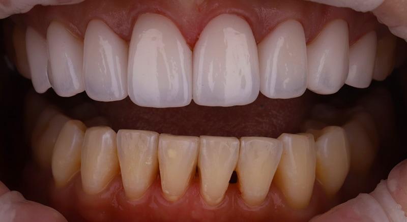 陶瓷貼片-牙齒矯正後-牙縫大-上排陶瓷貼片-下排牙齒黑三角-比較-沈志容醫師-桃園