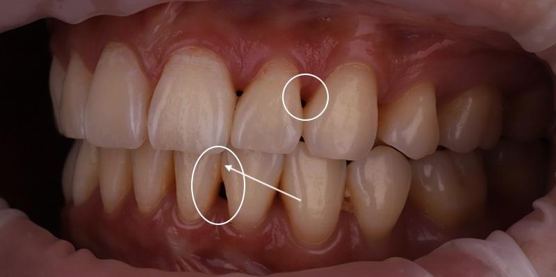 陶瓷貼片-牙齒矯正後-牙縫大-牙齒黑三角治療前-沈志容醫師-桃園
