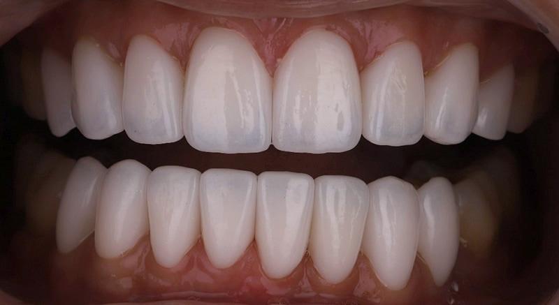 陶瓷貼片-牙齒矯正後-牙縫大-牙齒黑三角治療後-完成上下排瓷牙貼片-沈志容醫師-桃園