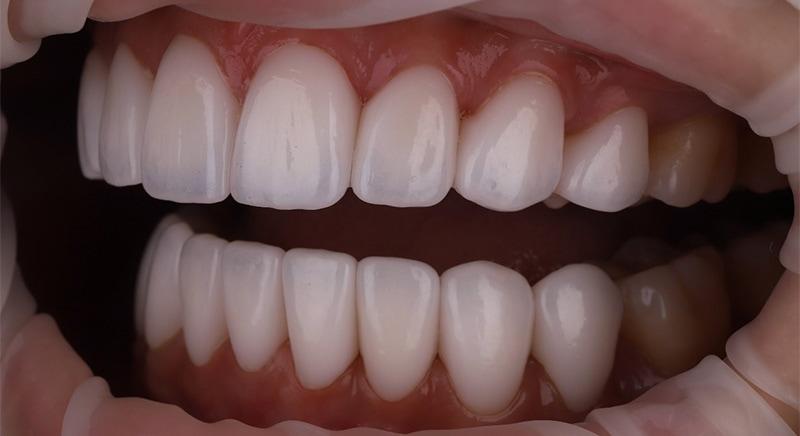 陶瓷貼片-牙齒矯正後-牙縫大-牙齒黑三角治療後-沈志容醫師-桃園
